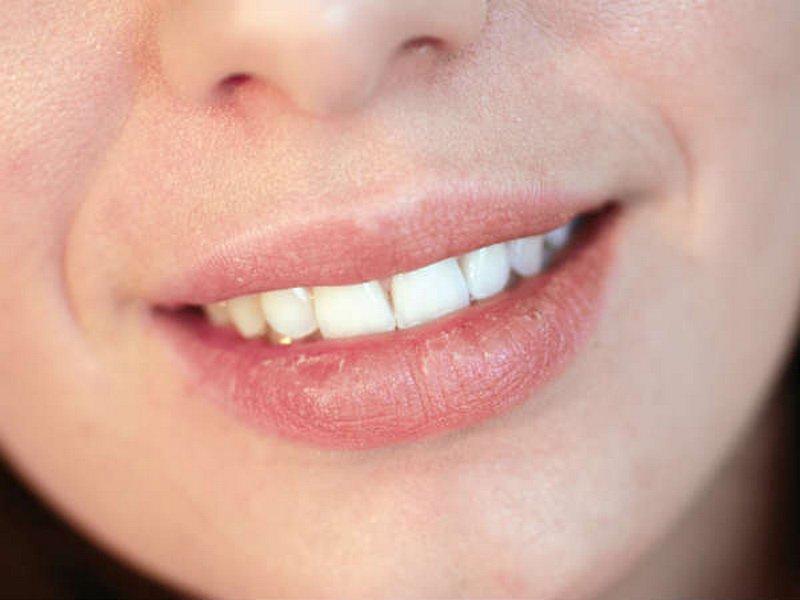 Bơ ca cao có tác dụng điều trị cho môi nứt nẻ