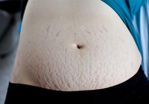 Dầu nụ tầm xuân giúp làm giảm rạn nứt da